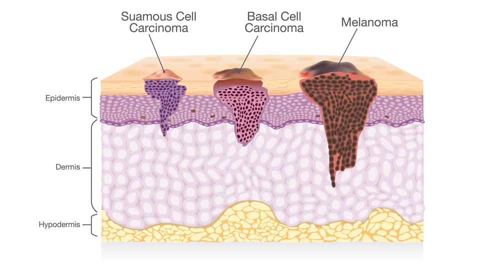 types de cancer de la peau